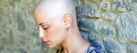 strata vlasov ako dôsledok chemoterapie