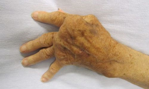 artritida