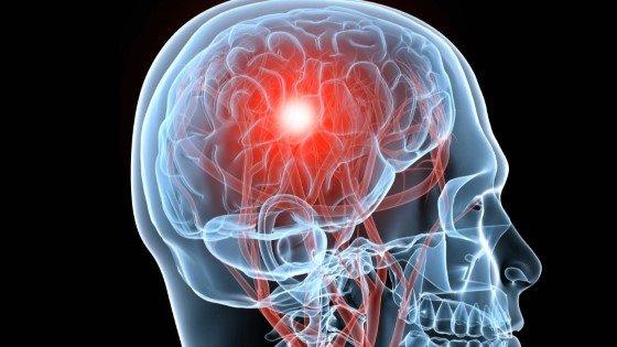 Konopí lék při poranění mozku