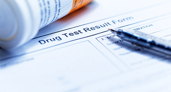 Testy na THC v moči