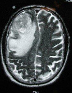 bujení nádorových buněk v mozku