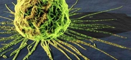 Šíření rakovinných buněk je rychlé