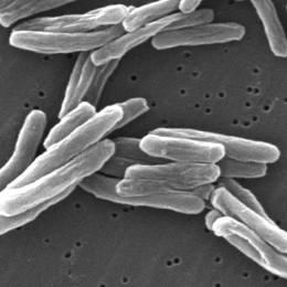 Užívanie kanabisu a riziko tuberkulózy: systematické zhrnutie (ŠTÚDIA 2019)