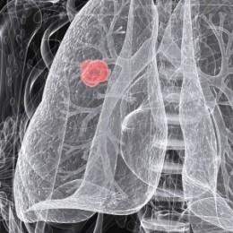 Kedy môže konope skomplikovať liečbu rakoviny?
