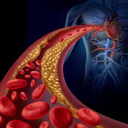 Využití CBD oleje při léčbě aterosklerózy