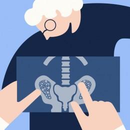 CBD olej při léčbě osteoporózy
