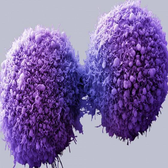 Škodí konope pľúcam?