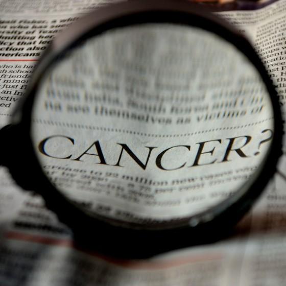 Možnosti použitia konope ako podporujúce liečby rakoviny (ŠTÚDIA 2019)